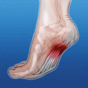 heel pain plantar fasciitis symptoms